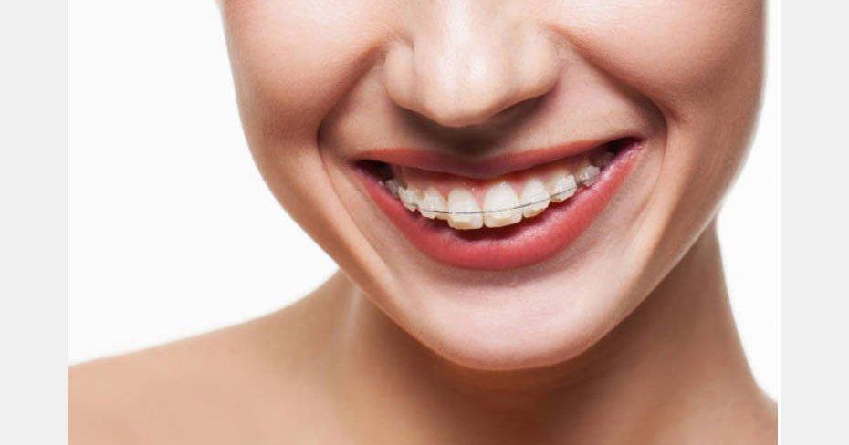 Veja Quais Sao Os Tratamentos Odontologicos Capazes De Transformar O