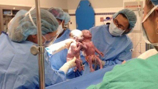 Jenna e Jillian nasceram prematuras de mãos dadas Foto: Divulgação / Akron Children's Hospital