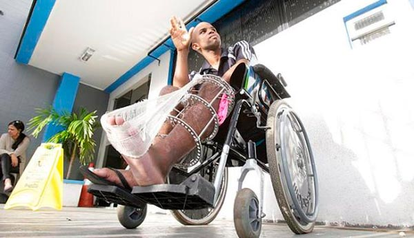 Ednaldo Alves foi atingido por um automóvel, quando estava de moto | Foto: Fernando Amorim | Ag. A Tarde