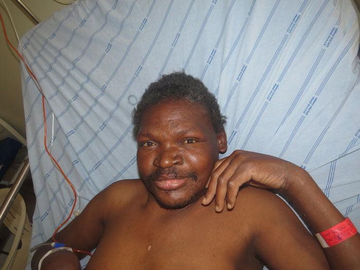 O paciente, conhecido como Jamaica, está internado no Hospital do Oeste | Foto: Divulgação