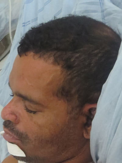 O paciente chegou ao HO através do SAMU de Luís Eduardo Magalhães | Foto: Ascom HO