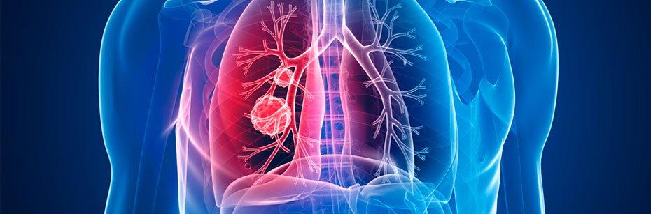 estudo-demonstra-que-novo-medicamento-imuno-oncologico-pode-ajudar-pacientes-com-cancer-de-pulmao-a-viverem-mais-cp-flash